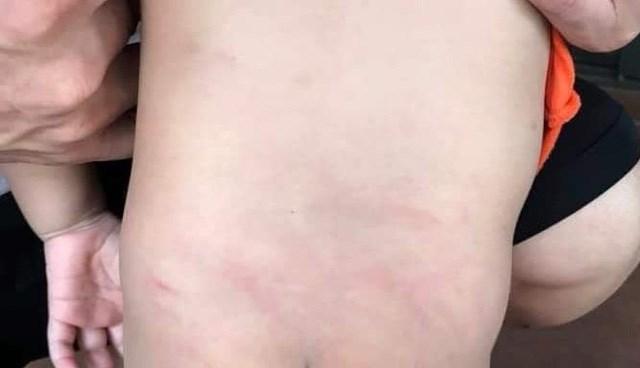 Vết tấy đỏ ở phần lưng và mông con chị Ngọc.