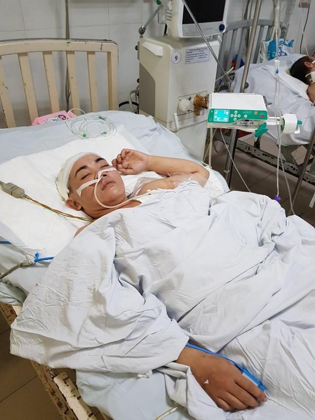 Bệnh nhân Na đang được điều trị tại Bệnh viện đa khoa Quảng Nam.