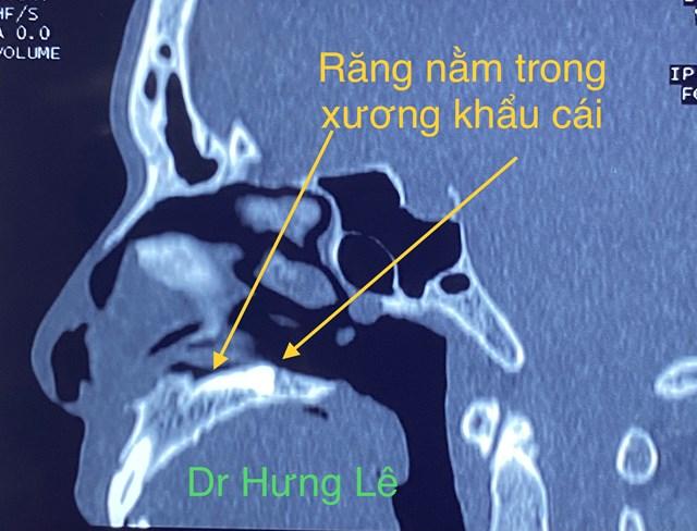 Clip dùng xẻng đào chiếc răng mọc lạc chỗ trong khoang mũi bệnh nhân - Ảnh 2