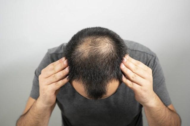 Tìm ra tế bào gốc có thể giúp tái tạo tóc - Ảnh 1